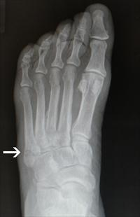 An X-ray, in shades of grey and black, of a left foot with a tiny fracture on the far left side, near where the foot meets the ankle.