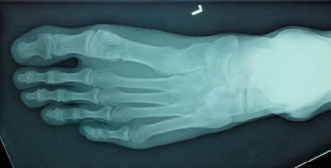 An X-ray, in shades of blue and green, of a healthy left foot.